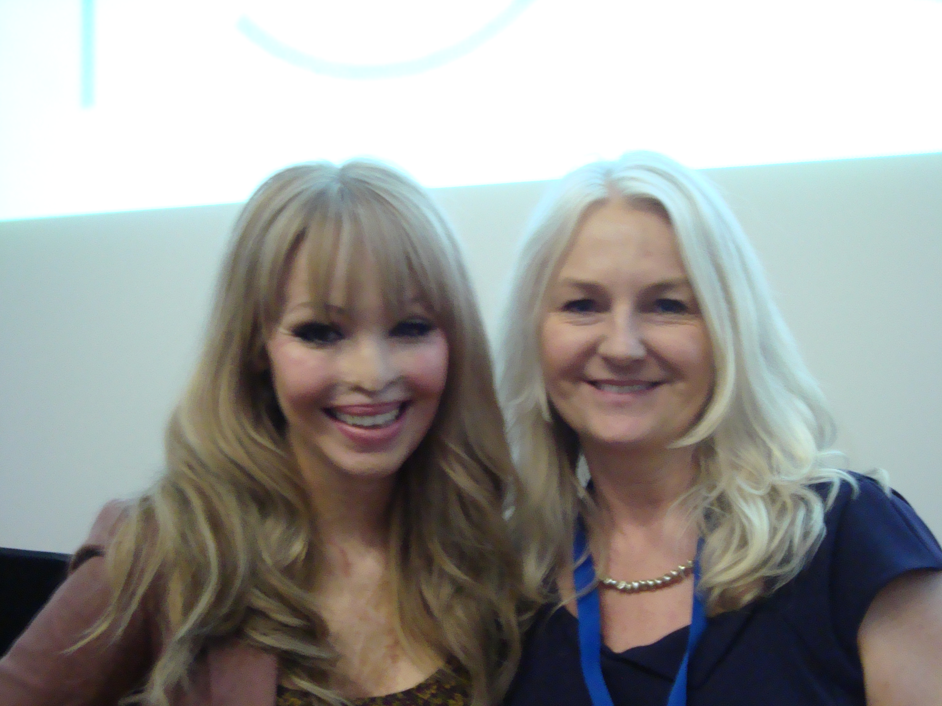 Katie Piper Now Katie piper � an inspiring